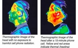 There's A Potential Link Between Cell Phone Radiation & Brain Tumors