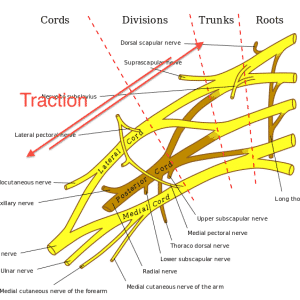 Birth Injury Lawyer - Brachial plexus