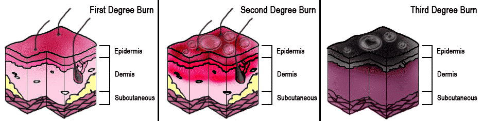 Burn_Degree_Diagram